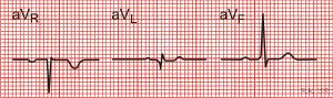 Electrocardiography (EKG): An Introduction - Medicalopedia